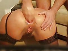 Freton - gaping anal fisting