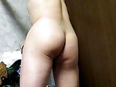 open anus